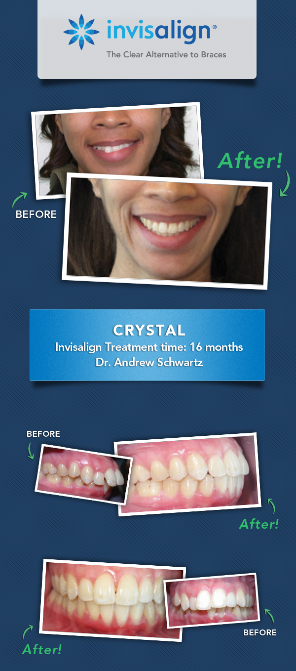invisalign-results-fix-dental-issues_crystal